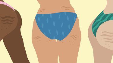 Illustratie van vrouwen met cellulite